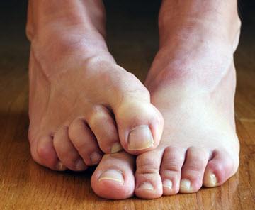 ciuperca piciorului fungaxim